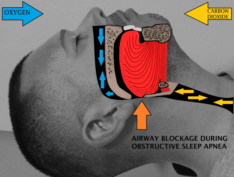 SNORING: HOW TO STOP SNORING FOR BETTER HEALTH