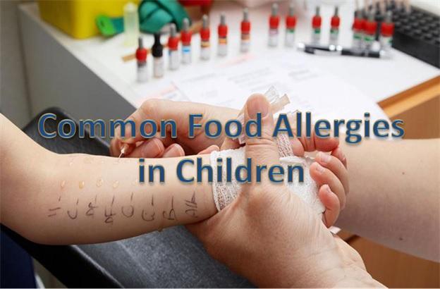 For Parents - Food Allergies In Children