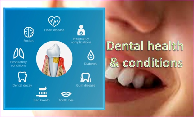 Dental Health And Conditions