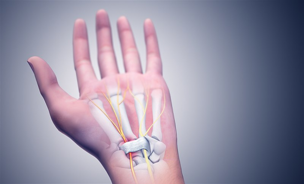 Get Relief from Carpal Tunnel Syndrome