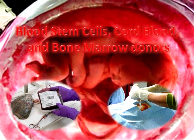 Bone Marrow Donors