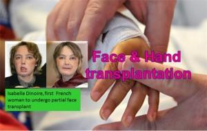 Face and Hand Transplantation