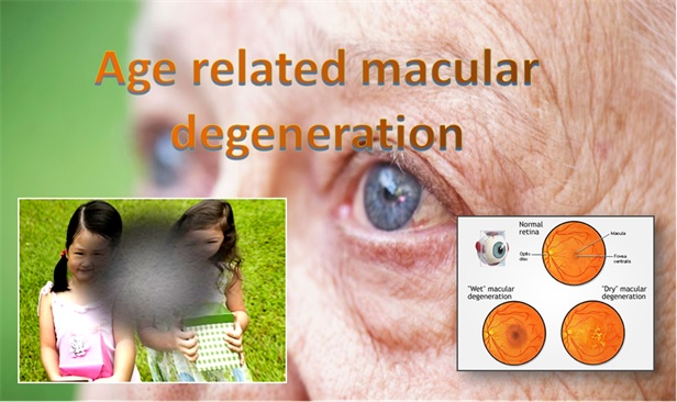 Age Related Macular Degenration