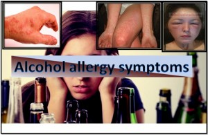 Alcohol Allergy Symptoms