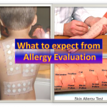 What To Expect From An Allergy Evaluation?