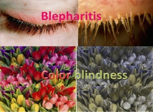Blepharitis - Color Blindness