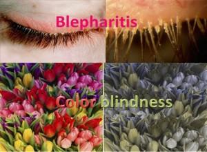 Blepharitis - Color Blindness