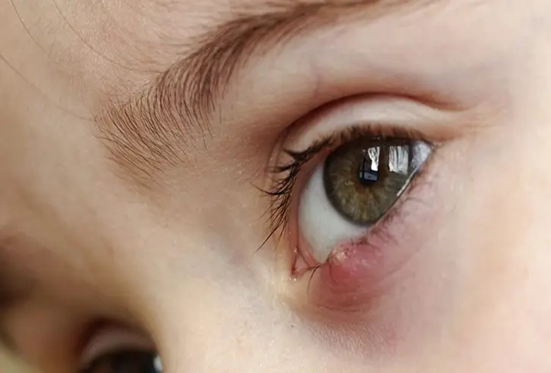 Stye - Eyelid Cyst