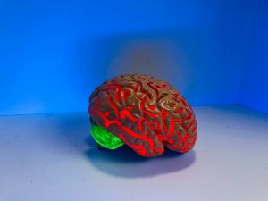 Brain age may predict the early death