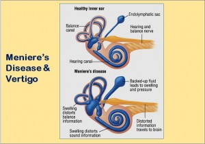 How Meniere's Disease Causes Vertigo?