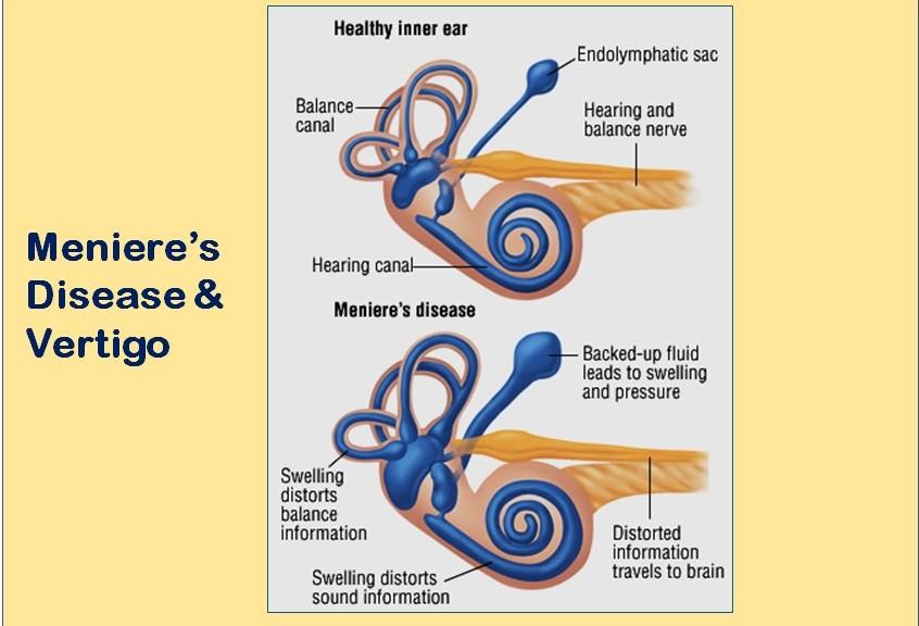 Meniere'sdisease-healthylife-werindia