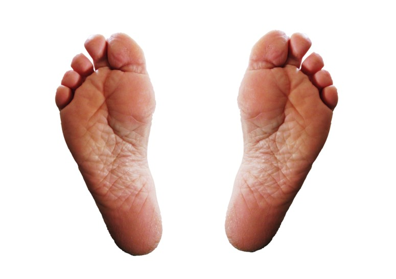 Cracked heels – what is the solution?