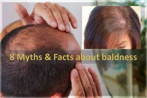 8 Myths About Baldness And The Facts