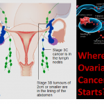 ovariancancer-healhtylife-werindia.jpg