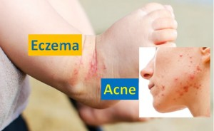 Eczema and Acne - Skin Diseases