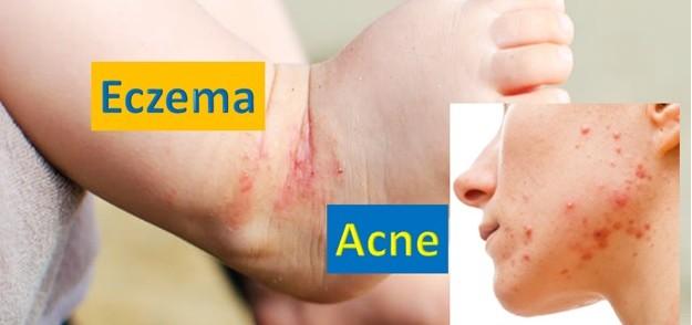 Eczema and Acne - Skin Diseases