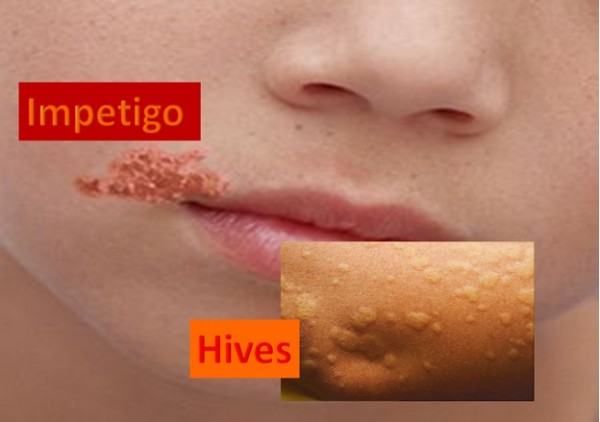 Impetigo and Hives - Skin Diseases