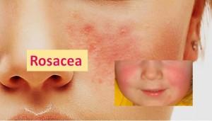 Rosacea - Skin Diseases
