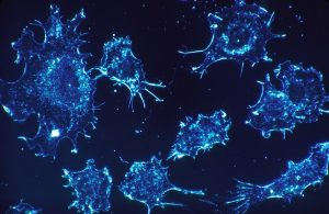 Customized Viruses stimulate the Immune system to fight Cancer