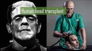 Human head transplant