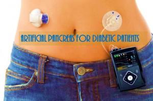 Artificial pancreas