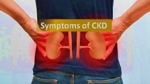 symptoms of CKD