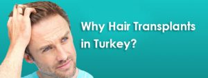 Why Are Turkey's Hair Transplants So Popular? A Brief Explanation