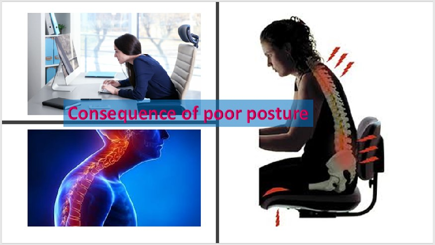 Consequence of poor posture