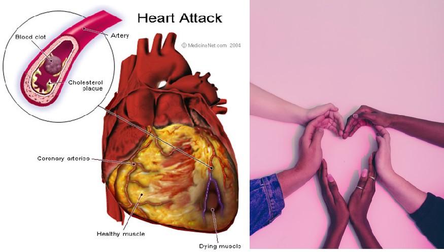 Heart attack prevention tips in women