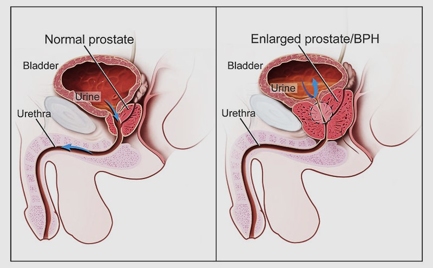 Prostate health tips