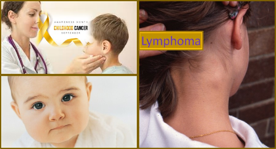 Lymphoma in children