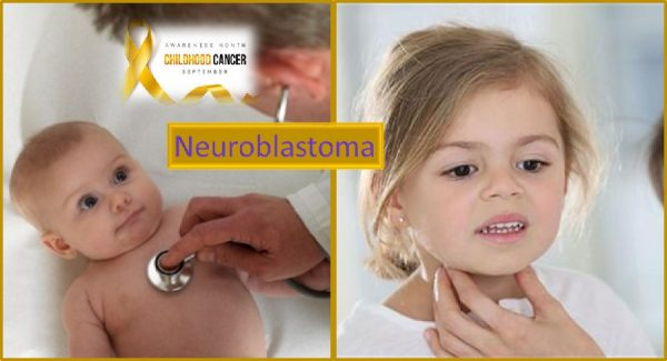 Neuroblastoma juvenile cancer