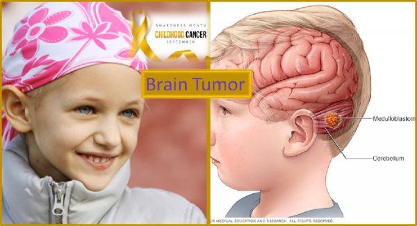 Brain tumor in children