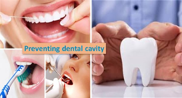 Tips to prevent dental cavities