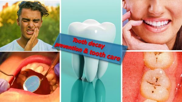 Tooth decay, prevention and care