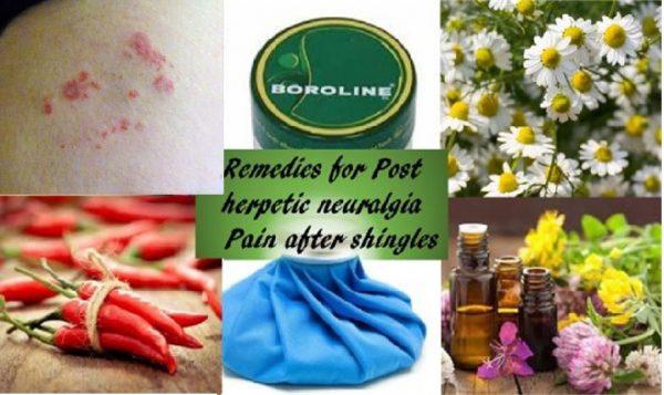 Remedies for shingles