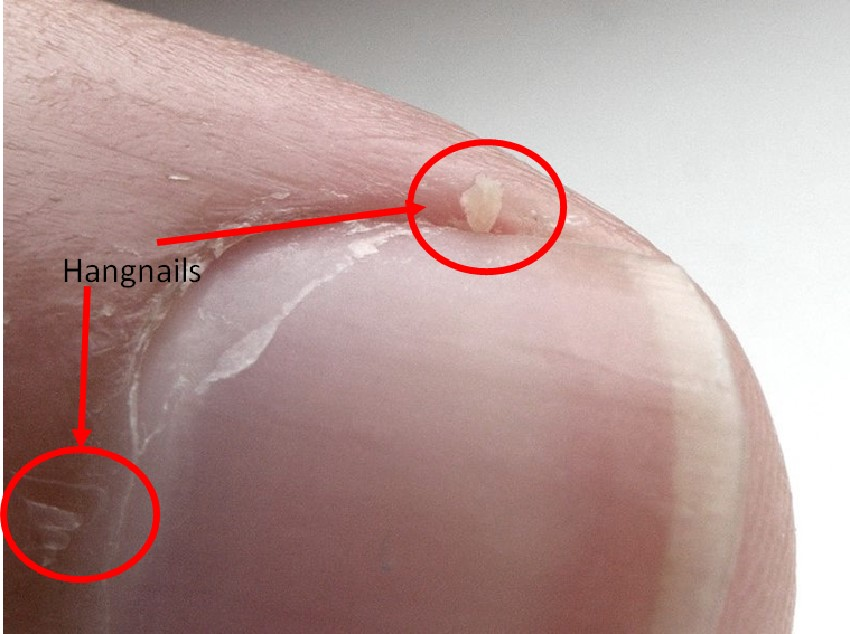 Hangnails home remedies