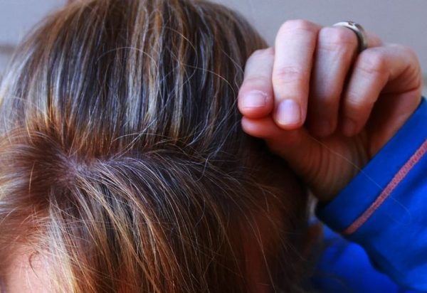 Remedies for premature hair greying