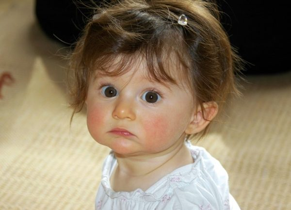 Baby's eye health